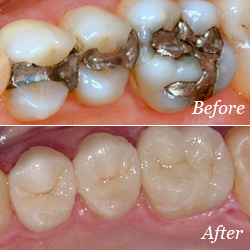 Crowns before and after image