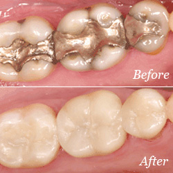 Fillings before and after image